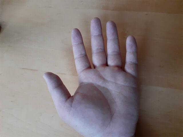 手のひら側もむくみ。