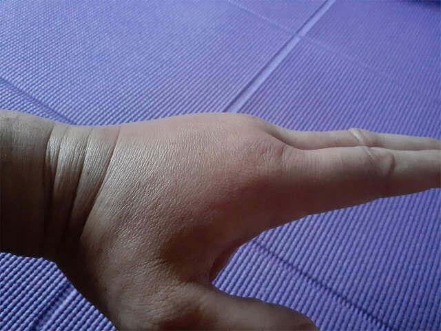 刺された手を横から撮影。モコッと腫れてます。